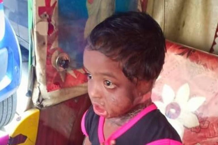 Kasi, lo sfortunato bambino indiano per il quale è stata organizzata una raccolta fondi