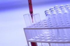 Coronavirus, 2809 casi positivi in Puglia