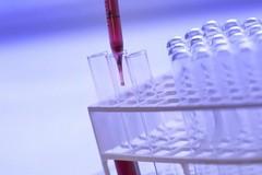 Coronavirus, Angarano: «I biscegliesi contagiati sono nove»