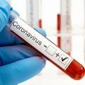 Coronavirus, undici nuovi casi positivi in Puglia