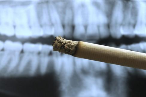 Fumo danno denti